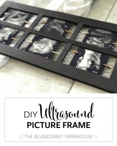 DIY ultrasound picture frame